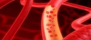 Un disegno che ricostruisce il torrente coronarico.