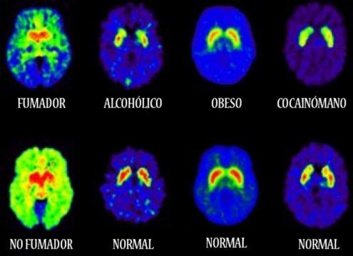 Efectos del alcohol en el cerebro adolescente