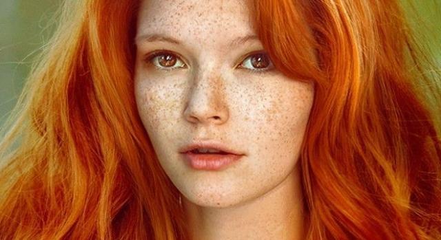 Na pele as manchas escuras de uma foto apareceram