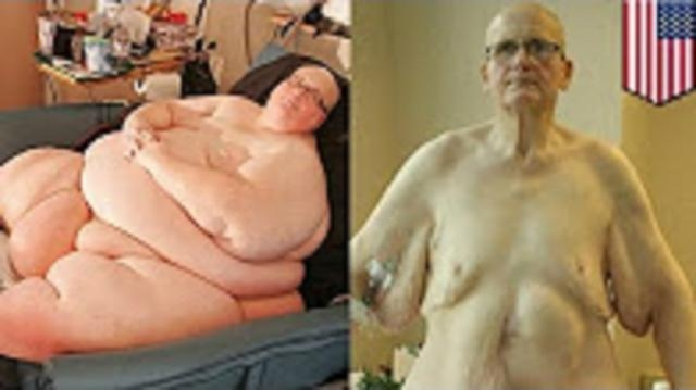 Confirm. was world s fattest man paul think