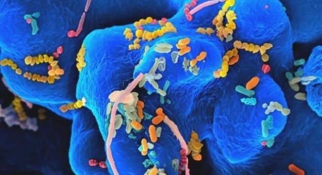 Il microbiota intestinale influenza il processo di carcinogenesi.