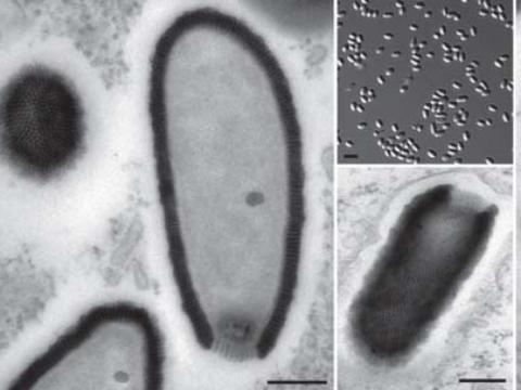 Il virus gigante scoperto in Siberia - corriere.it