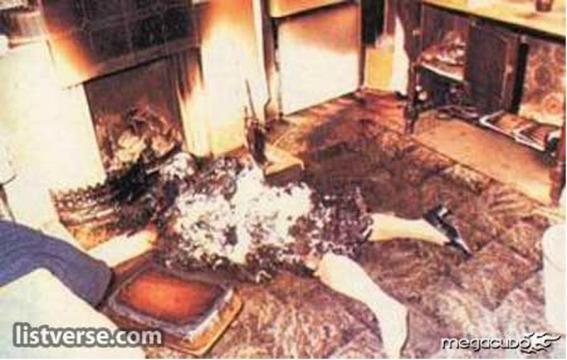 Spontaneous Human Combustion : UnexplainedPhotos - reddit.com