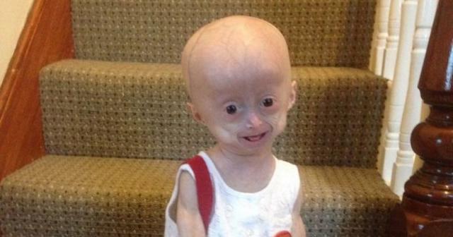 Lucy Parker aveva 8 anni ma sembrava una minuscola vecchina per una rara malattia al momento incurabile. Foto: Facebook.