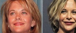 La actriz Meg Ryan antes y después de operarse.