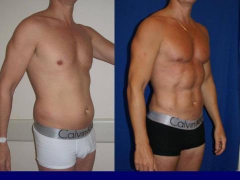 Se logra el six-pack abdominal