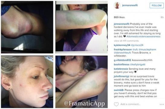 Foto da ex-mulher agredida, agressão em fotos