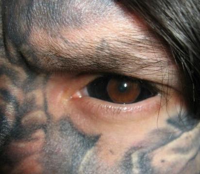 Resultado de um Eyeball Tattoo