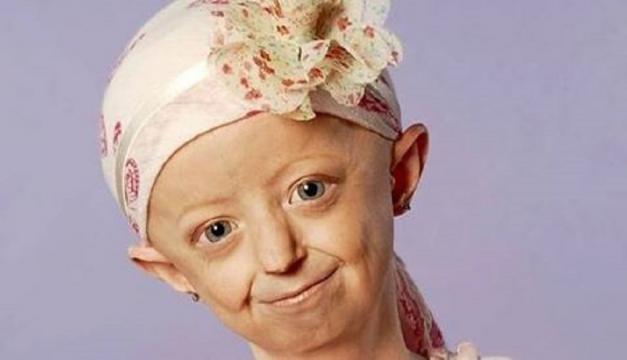 Hayley morreu com 17 anos.