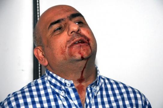 Mario Casalongue, después de la agresión