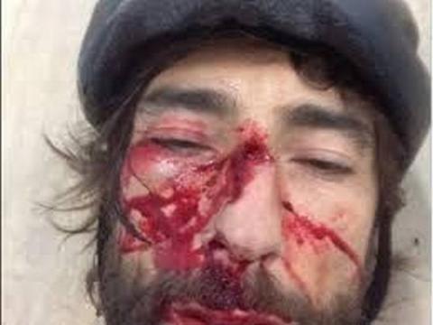 Gli effetti dell'aggressione sul viso di Brumotti.