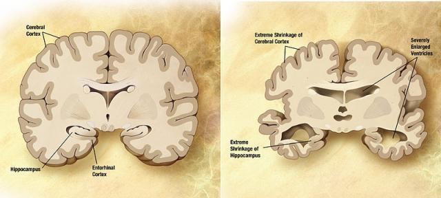 Confronto tra un cervello sano (a sinistra) e un cervello di una persona affetta da Malattia di Alzheimer (a destra). Fonte: wikipedia.