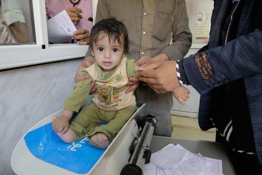 United Nations News Centre - Malnutrition among children in Yemen ... - un.org