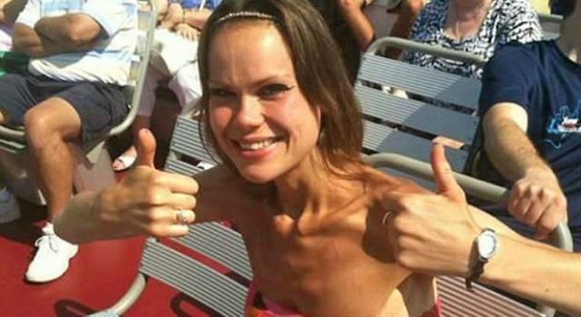 Lisa Milburn na altura em que sofria de anorexia (Fotografia:HotSpot Media)