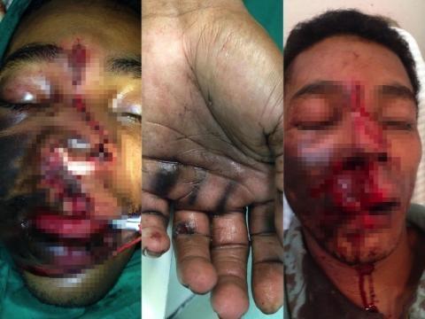 José Vânio da Silva, vítima de explosão de celular