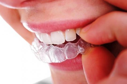 Placa de silicone para clareamento dental caseiro. (https://goo.gl/images/CiZSZP)