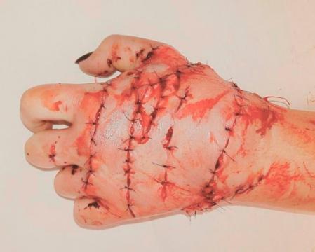 Os médicos conseguiram reimplantar apenas a mão esquerda de Margarita (Crédito: Alexander Myasnikov/East2West News)