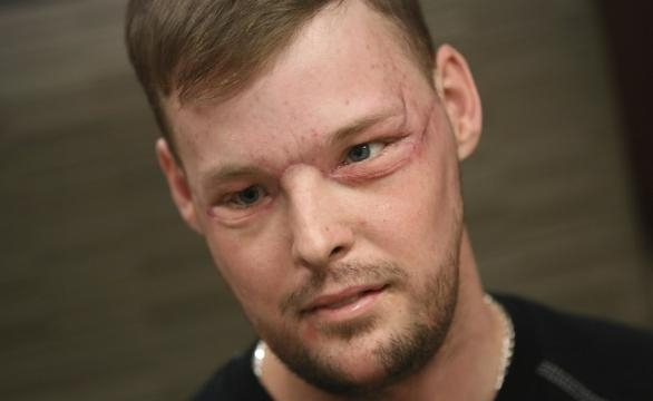 Andy Sandness passou por uma cirurgia milagrosa