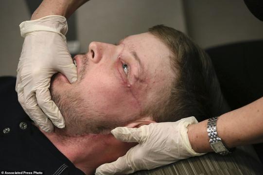 Andy Sandness recuperou sua vida após a impressionante cirurgia