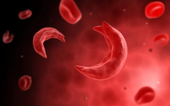 The Sickle Cell Patient – ED Management of Acute Complications ... - emdocs.net