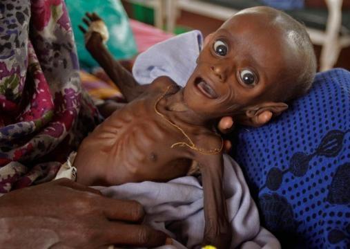 Famine in East Africa - The Atlantic - theatlantic.com