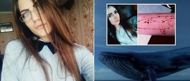 Baleia Azul: jovem se mutilam e até como última tarefa precisam até tirar a própria vida num jogo russo.
