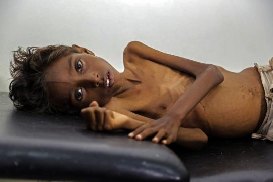 Enfant malnutri au Yémen, Huffingtonpost