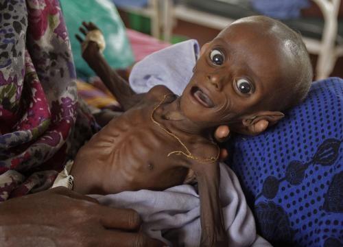Un enfant en proie à la famine en Somalie