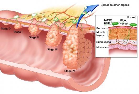 Esophageal Cancer - healthhub.sg