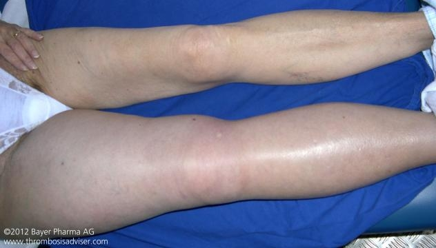 Trombosis venosa profunda en miembro pelvico derecho.