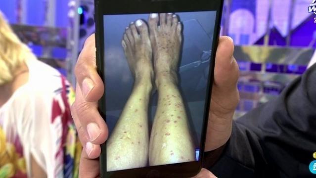 en Sálvame mostraron una foto de las terribles picaduras de Lucía pariente en las piernas