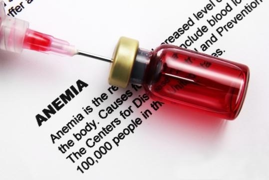 7 Most Common Types of Anemia | ActiveBeat - activebeat.com