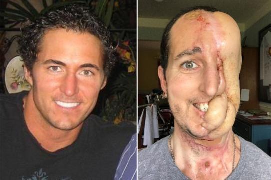 Tim McGrath antes e depois do procedimento cirúrgico