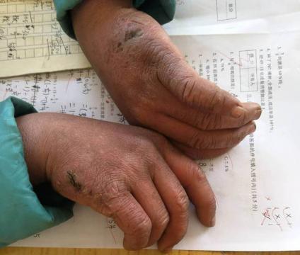 As mãos de Wang podem ser facilmente comparadas as mãos de um idoso.