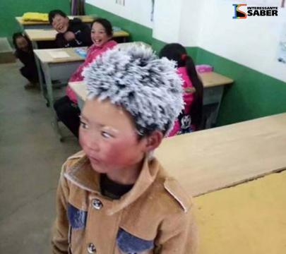 Outras crianças riam da condição do menino.