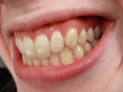 Image of mild dental fluorosis. Image via wikimedia commons. Author: josconklin