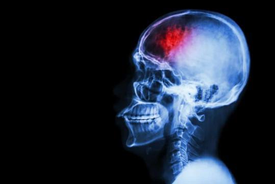 Síntomas de un derrame cerebral: como identificar las señales y más - superatuenfermedad.com