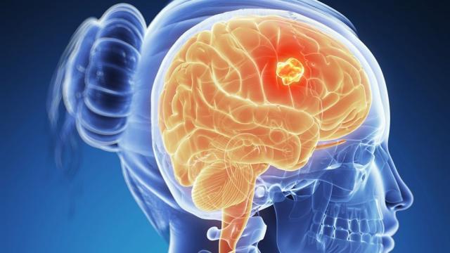 Una dieta alta en grasas podría inflamar tu cerebro : Su Médico - sumedico.com