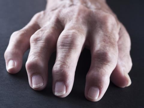 Articulación con artritis - muyinteresante.es