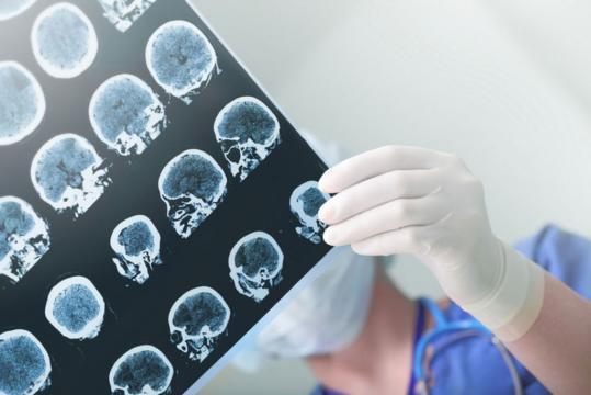 Alzheimer : bientôt un pronostic 4 ans avant ? - Top Santé - topsante.com