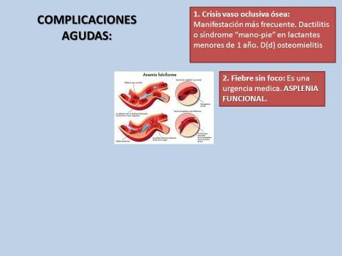 ANEMIA DREPANOCITICA. ¿SOLO HOSPITALARIA? - ppt descargar - slideplayer.es