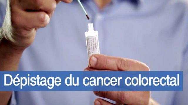 Dépistage du cancer colorectal en France - Doctissimo - doctissimo.fr