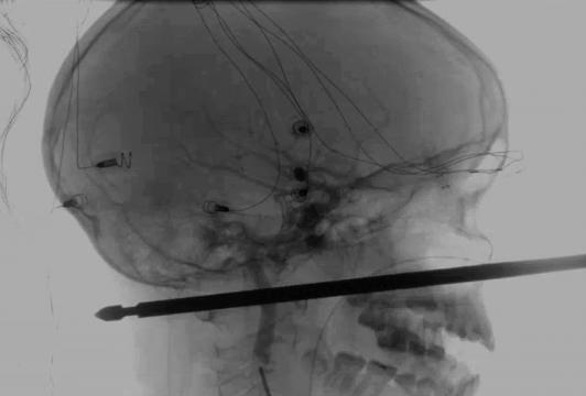 O objeto não atingiu olhos, cérebro, medula espinhal ou qualquer vaso sanguíneo grande do garoto
