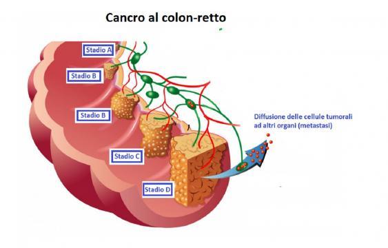 L'individuazione di biomarcatori specifici consentirà la diagnosi precoce del cancro al colon-retto in modo non invasivo.