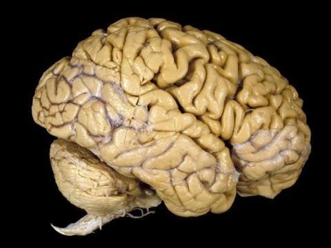 Imagen de un cerebro en un museo.